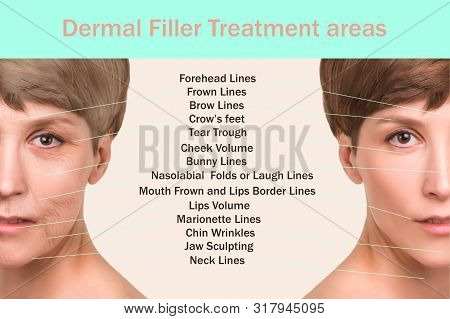 Anti-aging, beauty treatment, aging and youth, lifting, skincare, plastic surgery concept. Filler Treatment areas for anti-wrinkle injection. Lifting by thread concept stock photo