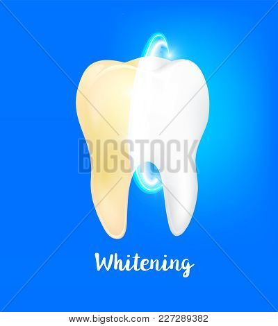 Cleaning dirty tooth on blue background, clearing tooth process. Tooth Whitening, Dental care Concept. teeth restoration. Yellow and white teeth. stock photo