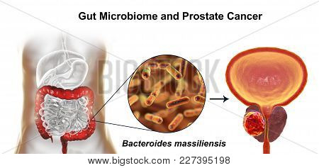 Gut microbiome and prostate cancer, 3D illustration showing association of Bacteroides massiliensis bacteria present in large intestine and prostate cancer development stock photo