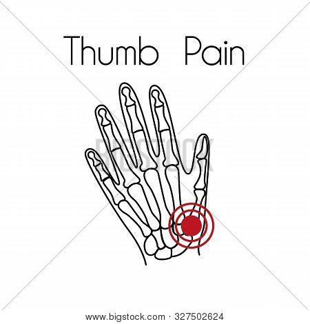 Hand pain linear icon. Vector abstract minimal illustration of a hand with red spot on it suffers from thumb pain. Design template for medicine or therapy for hand pain or carpal tunnel syndrome stock photo