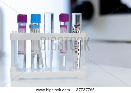 Medical tubes for analysis and test  close up stock photo