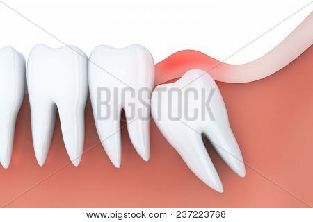 Toothache and inflammation in wisdom tooth. 3d illustration stock photo
