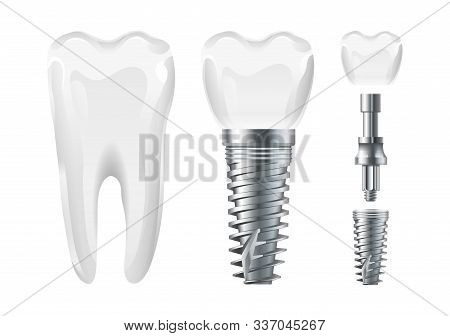 Dental surgery. Implant cut and healthy tooth. Realistic vector dental implant and crown. Stomatology elements tooth, dental care and treatment illustration stock photo