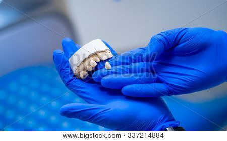 Dental, a dental prosthesis polishes .Artificial teeth, prosthetics.Prosthetics hands while working on the denture, false teeth. Closeup stock photo
