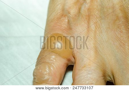Blisters or bleb on the finger skin after burn it with hot oil while cooking close up stock photo
