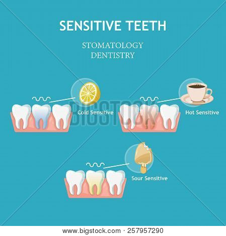 Sensitive teeth. Stomatology dentistry vector concept. Cold, hot and sour sensitive. stock photo