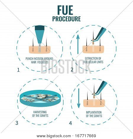 Follicular unit extraction procedure stages.  FUE hair loss treatment steps. Alopecia infographic medical design template for transplantation clinics and diagnostic centers. Vector illustration. stock photo