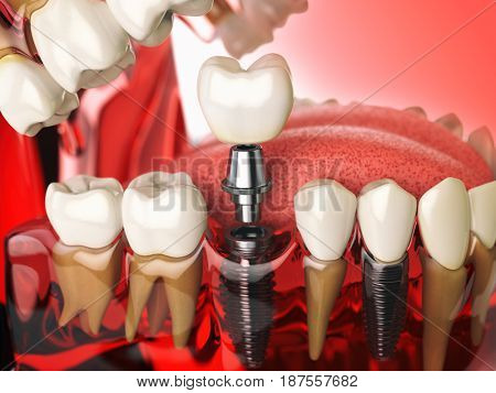 Tooth implant in the model human teeth, gums and denturas. Dental medicine stomatology concept. 3d illustration stock photo