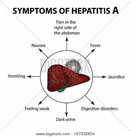 Symptoms of hepatitis A. Liver. Virus. Infographics. Vector illustration on isolated background stock photo
