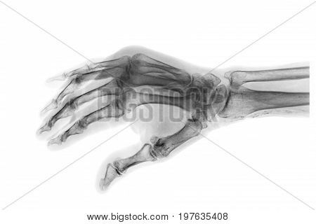 Fracture at 3rd and 4th metacarpal bone . Film x-ray of adult hands . Oblique view . stock photo