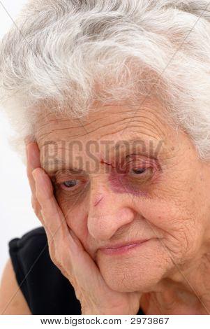 Photo of Sad Senior with purple eye . stock photo