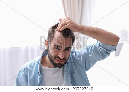 Young man with hair loss problem indoors stock photo