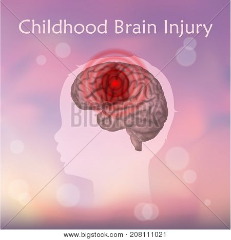 Braim injury in infants, childhood. Vector medical illustration. Kid, baby. Blurred pink background, silhouette of child head, anatomy image of damaged human brain. stock photo