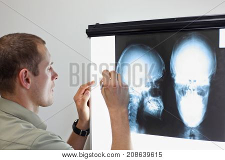 Specialist watching images of skull  at x-ray film viewer,making notes. Diagnosis,treatment planning stock photo