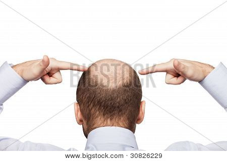 Human alopecia or hair loss - adult man hand pointing his bald head stock photo