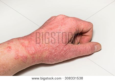 Allergic skin lesions of the hand with cracks, inflammation and flaking. Psoriasis, atopic dermatitis, eczema. Skin problems stock photo