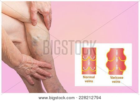 Varicose veins on a female senior legs. The structure of normal and varicose veins. The varicosity concept with copyspace stock photo