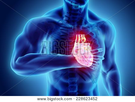 3d illustration of human heart attack, x-ray medical concept. stock photo