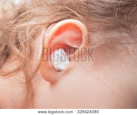 Close Up Ear Of Little Girl. Ear Pain And Cotton Wool In A Ear.