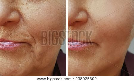 face of an old wrinkle woman before and after treatment stock photo