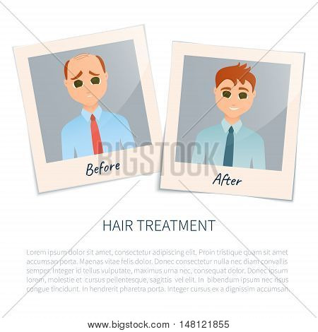 Vector illustration of two photographs of a man before and after hair treatment and hair transplantation. Male hair loss design template. Alopecia medical concept. Vector illustration. stock photo