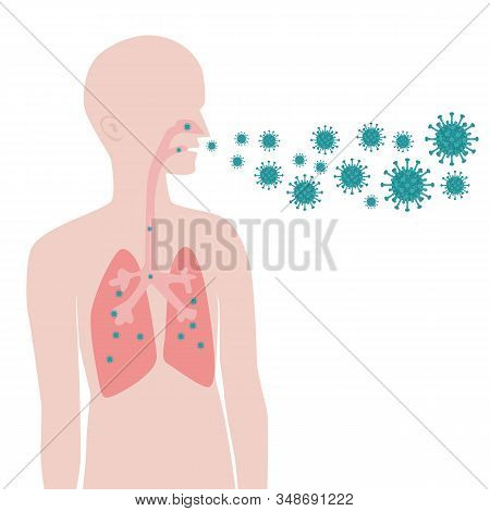 Ways of infection with viruses. Airborne transmission of the virus. stock photo