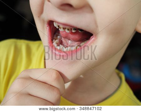 Abnormal boy tooth. The extra narrow strange tooth grew in the boys mouth. Boy shows his crooked tooth. Patient Orthodontist. Childrens teeth problems stock photo