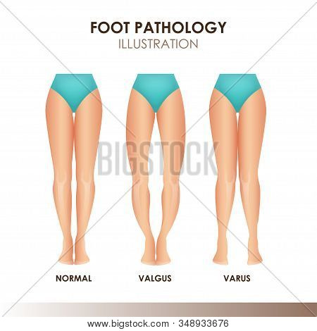Foot pathology illustration. Normal, valgus, varus. Legs disease, deformation stock photo