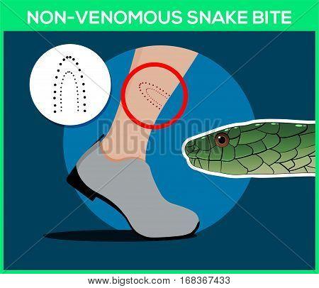 Non-venomous snake bite in the leg. Snakebite. Beware of snakes. Flat vector illustrations stock photo
