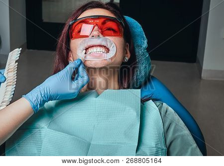 A woman dentist checks the level of teeth whitening with a dentists color in the dentist office. stock photo