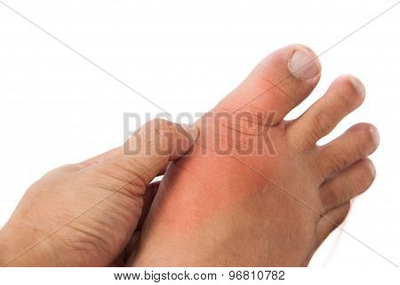 Hand embracing foot with deformed right toe due to painful gout inflammation stock photo