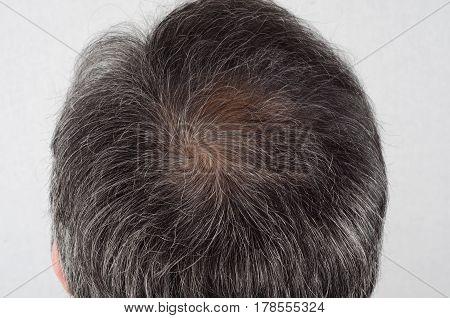 hair loss and grey hair Male head with hair loss symptoms stock photo