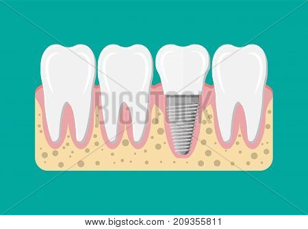 Tooth restoration. Dental implant. Dental prostheses. Artificial teeth with steel pin. Oral care, stomatology and dentistry. Vector illustration in flat style stock photo