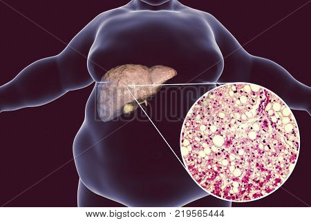Obese man with fatty liver, 3D illustration and photomicrograph of liver steatosis. Conceptual image for non-alcoholic fatty liver disease stock photo