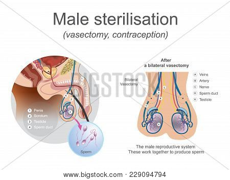The male reproductive system these work together to produce sperm. Cut or block the tubes so that egg and sperm cannot meet. Illustration. stock photo