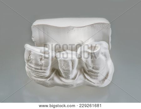 Technical shots of plaster model on a dental prothetic laboratory. On a white bacjground. Close up. stock photo