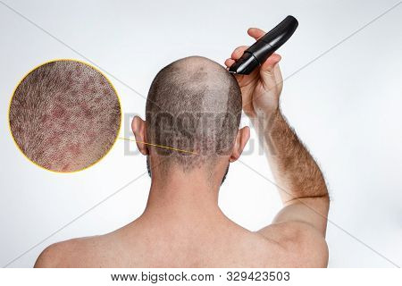 The concept of baldness and baldness. A man holds a hair clipper and shaves the hair on top of his head. A shaved strip of hair shows psoriasis. Rear view stock photo