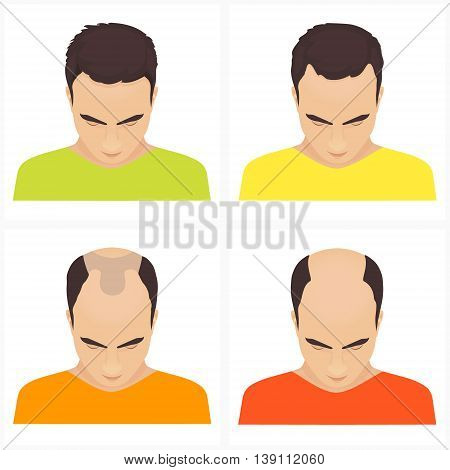 Male hair loss stages set. Male pattern baldness. Different stages of hair loss in men. Transplantation of hair. Human hair growth. Hair care concept. Vector illustration. stock photo