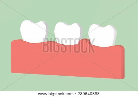gingivitis or periodontal disease, inflammation of the gum tissue around the teeth - dental cartoon 3d render flat style cute character for design stock photo
