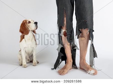 Cute Beagle and his owner in torn pants and bitten feet. Conceptual image on the theme of animal education. stock photo