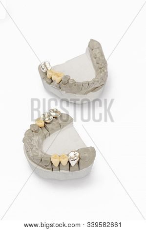 metal-ceramic dental crowns and bridges. dental prosthetics. artificial teeth. teeth models with crowns isolated on white background stock photo