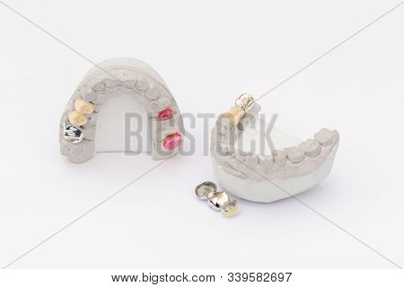 Dental crowns isolated on a white background. Orthopedic dentistry background. ceramic-metal dental bridges and crowns stock photo