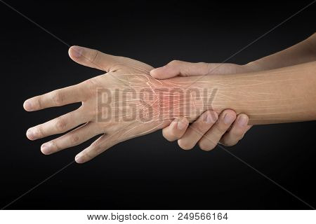 forearm muscle injury white background forearm pain stock photo