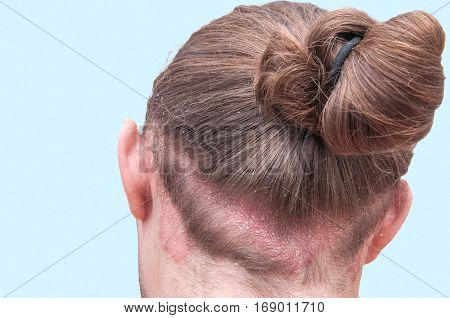 Red psoraitic spot on hairline. Dermatological disease stress seborrhea dermatitis appearance eczema concept. Proven diagnosis of Psoriasis Vulgaris exacerbation on back of man's head and scalp stock photo