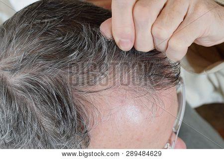 Trichotillomania, human impulse behavioral problem,hair pulling disorder stock photo