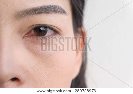 red eye. conjunctivitis or irritation of sensitive eyes. stock photo